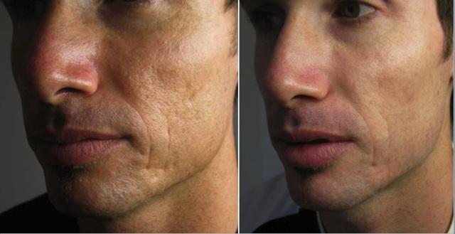 microneedle før og etter behandling