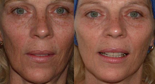 microneedling før og etter behandling